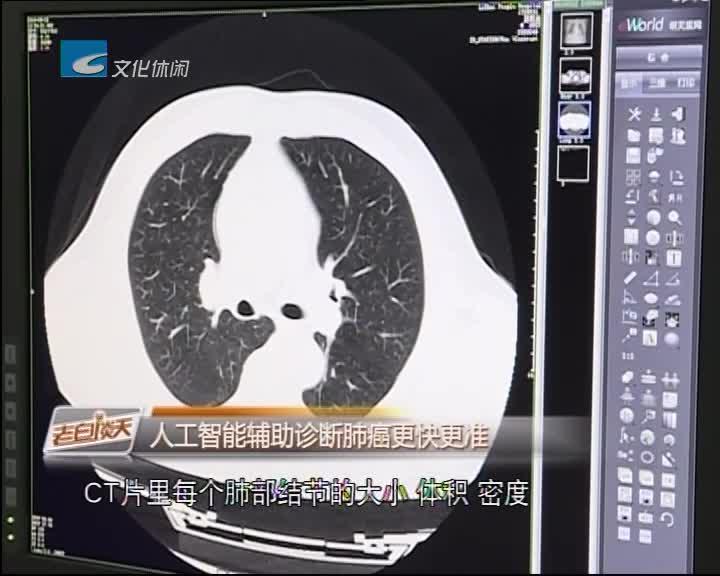 人工智能辅助诊断肺癌更快更准