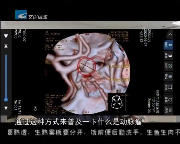 市人民医院多屏直播介入手术